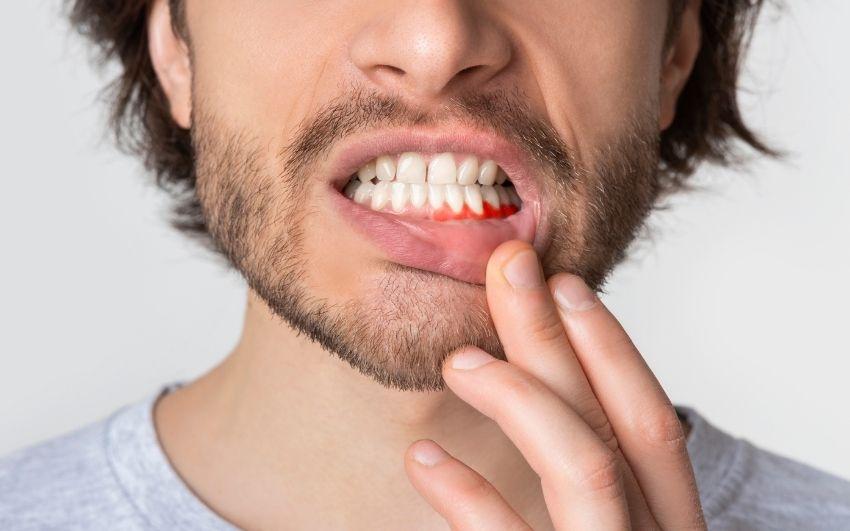 Periodontitis ¿Qué es? Causas y tratamientos